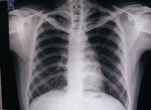 Chest X-ray normal