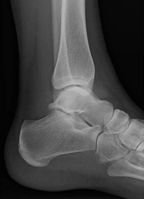 Ankle Lateral