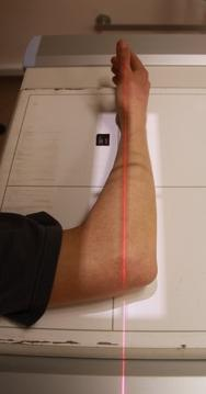 Forearm lateral View